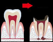 三重県桑名市江場 TNデンタルクリニック 一般歯科 虫歯