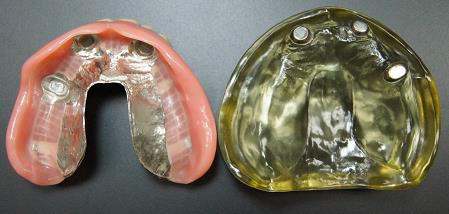 三重県桑名市江場 TNデンタルクリニック 入れ歯・ブリッジ 磁石式
