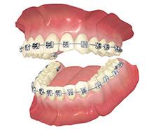 三重県桑名市江場 TNデンタルクリニック 矯正歯科